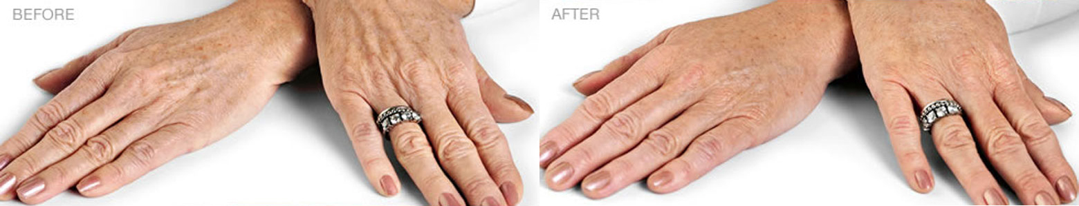 Before and After Dermal Filler Hand injections