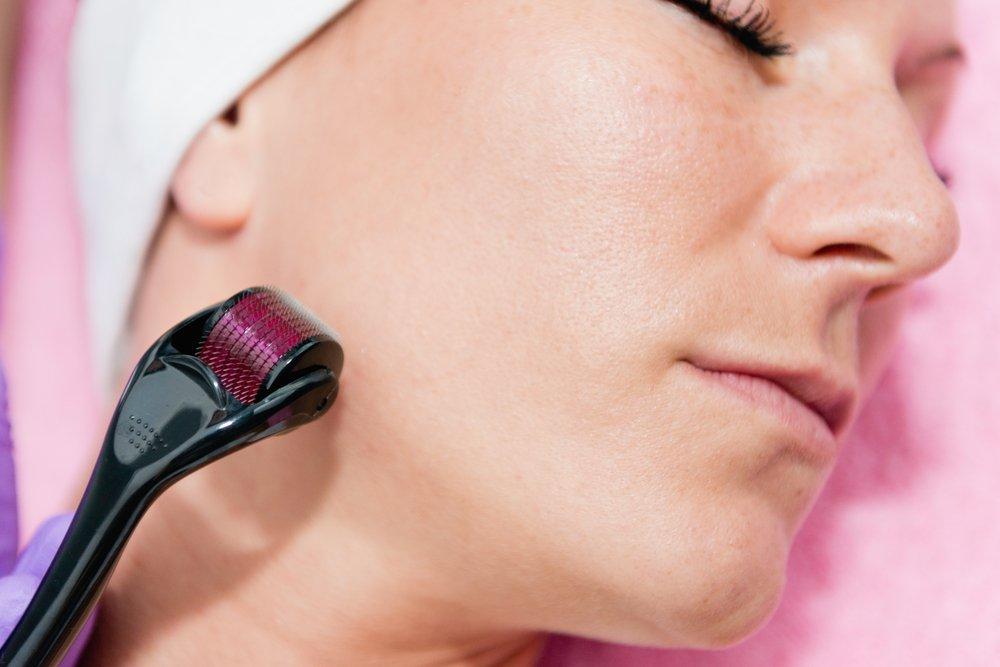 Facial Microneedling - INOVO Medical Aesthetics