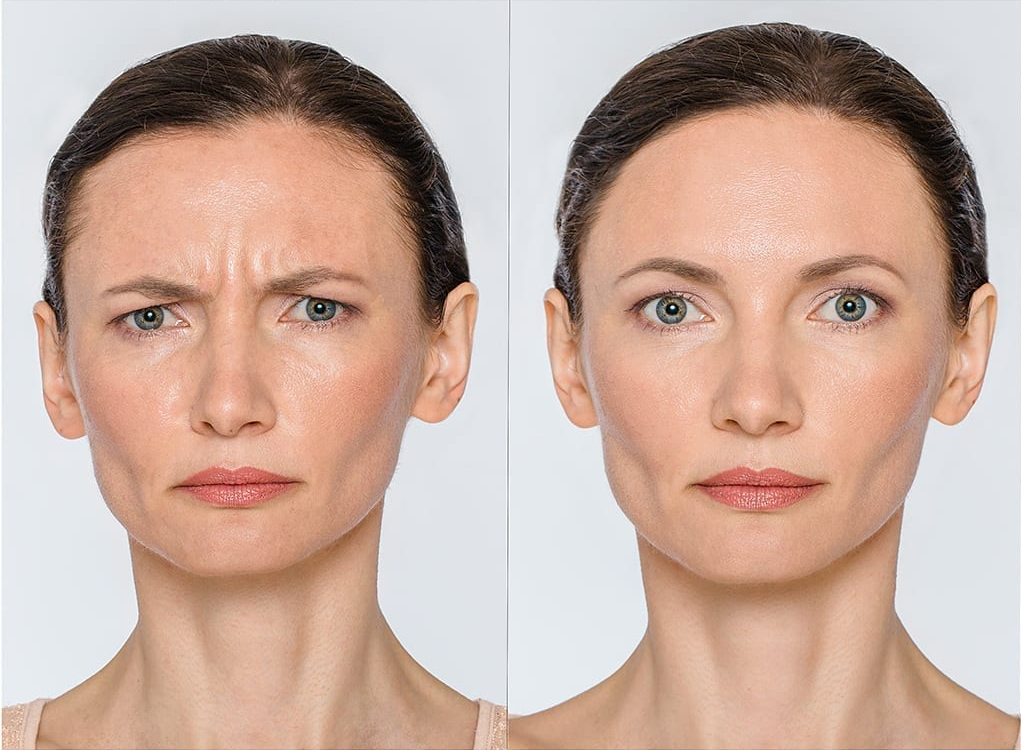 botox treatment for expressive muscles in the face, aesthetic care