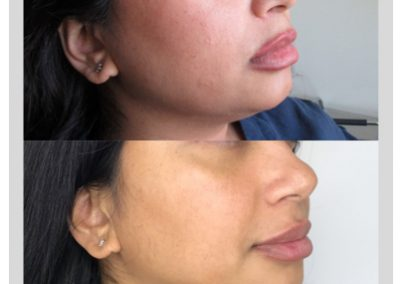 Cheek Fillers in Ottawa, Before and After