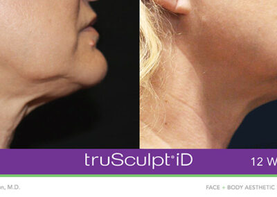 TruSculpt Body Sculpting in Ottawa Before and After