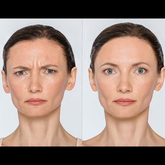 Ottawa Botox Injections Before and After